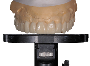 occlusal-plane-pic-copy